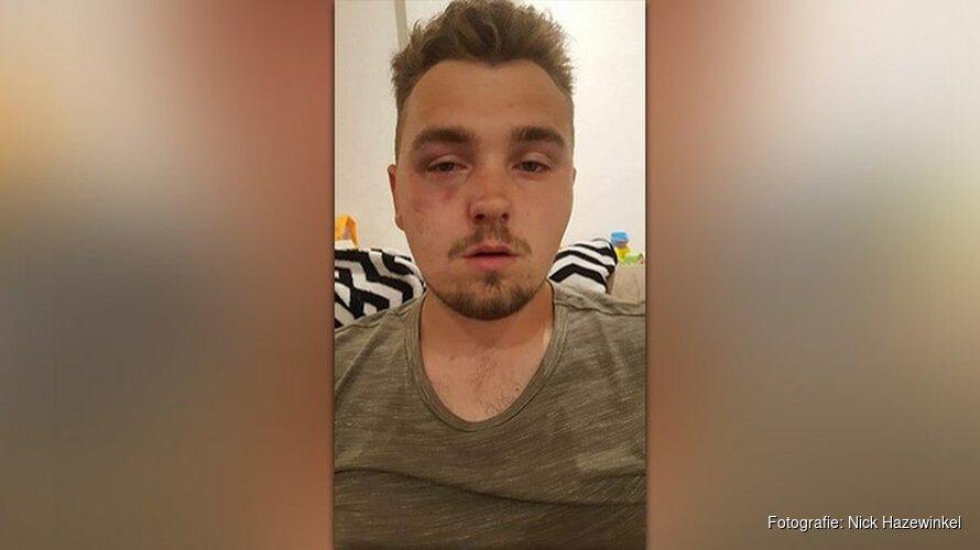 Nick (21) door groep jongens mishandeld na avondje uit